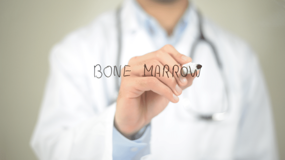 What Are Some Side Effects of Bone Marrow Transplants?